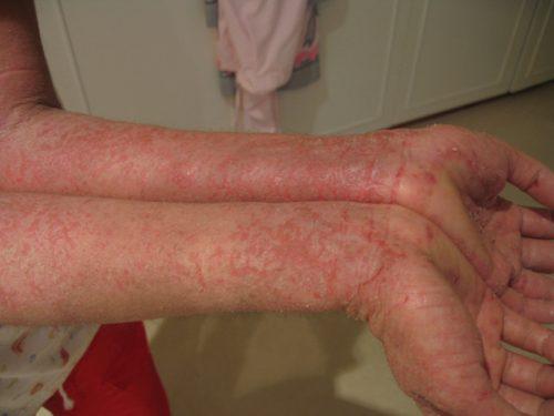 peau sensible baume du tigre rouge eczema et allergies